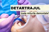 Mituri despre detartraj. Legătura dintre tartru și parodontoză - Caut Dentist Bun
