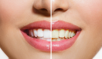 Albirea dentară cu laser – tot ce trebuie să știi înainte și… după! - Caut Dentist Bun