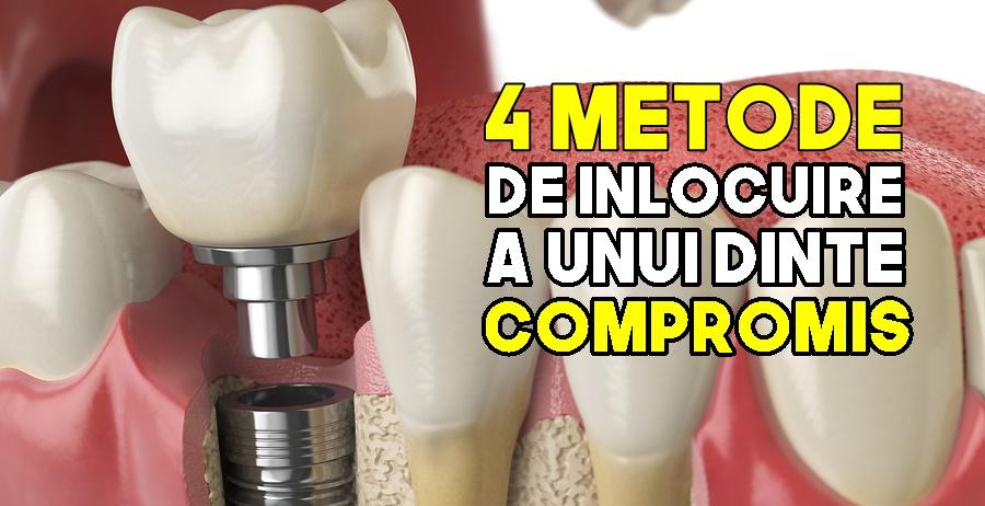 4 metode de înlocuire a unui dinte lipsă - Caut Dentist Bun