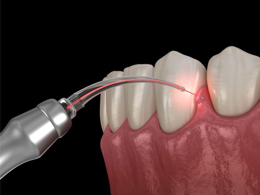 Utilizarea laserului pentru tratarea parodontozei - Caut Dentist Bun