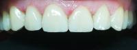 5 lucruri de care sa tii cont cand investesti in fatete - Caut Dentist Bun