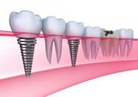 Implantul dentar - Caut Dentist Bun
