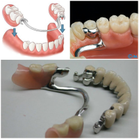 Proteza scheletata - Caut Dentist Bun